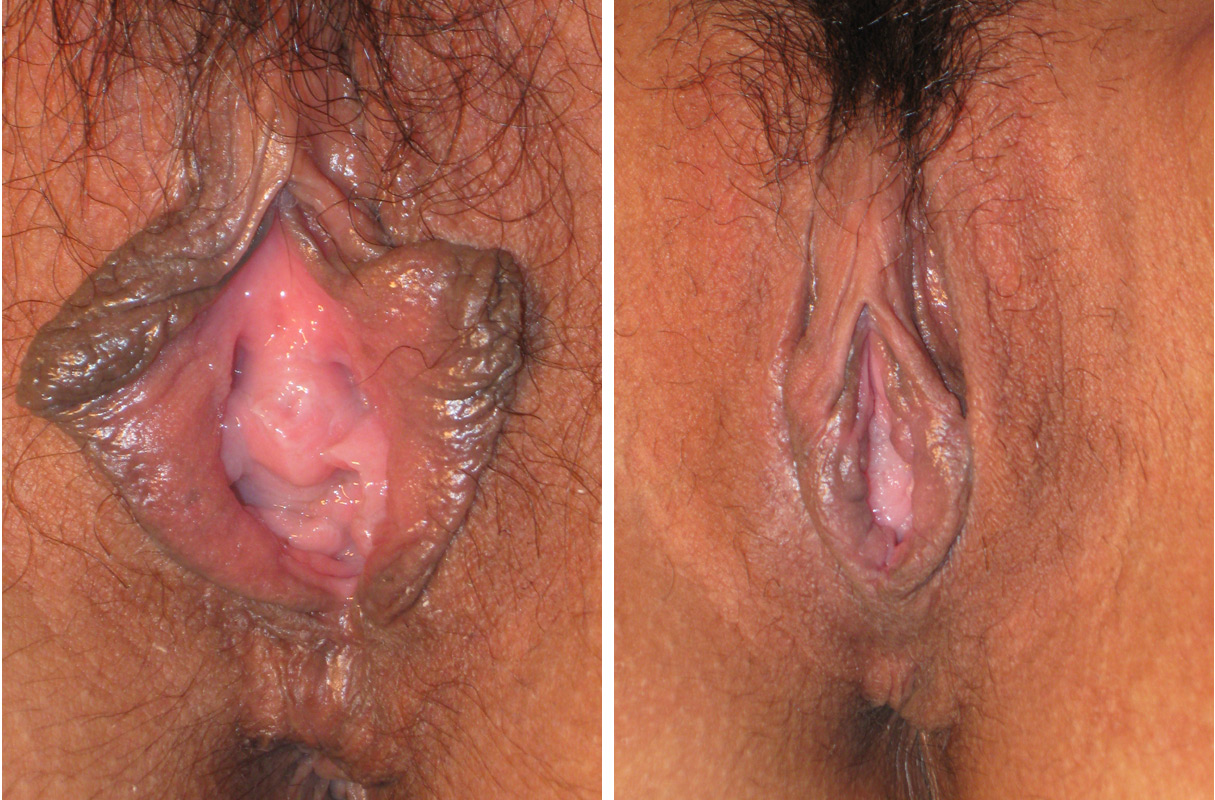Before and after vaginal surgeries